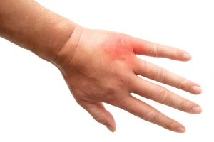 虫刺されで赤く腫れた手